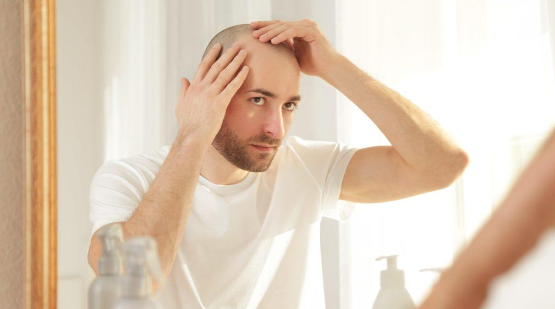 5 cortes que te harán lucir impecable si sufres de caída de pelo